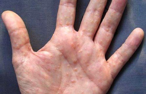 аллергия на гранат фото
