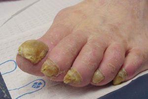 Как лечить грибок ногтей лавровым листом