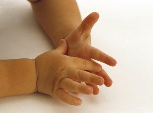 Почему потеют руки и ноги у ребенка