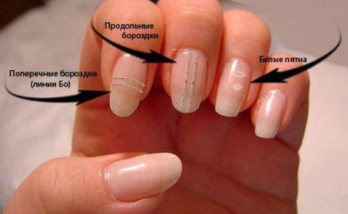 Как вылечить ногти чтобы они не слоились