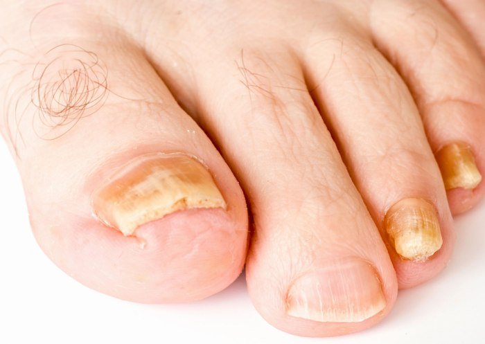 Эффективное средство от грибка ногтя большого пальца