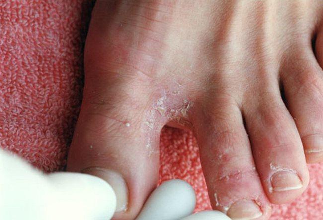 Как лечить грибок на стопе между пальцами ног