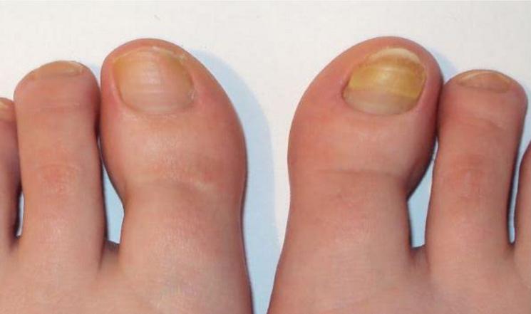 Грибок ногтей лечение экзодерил