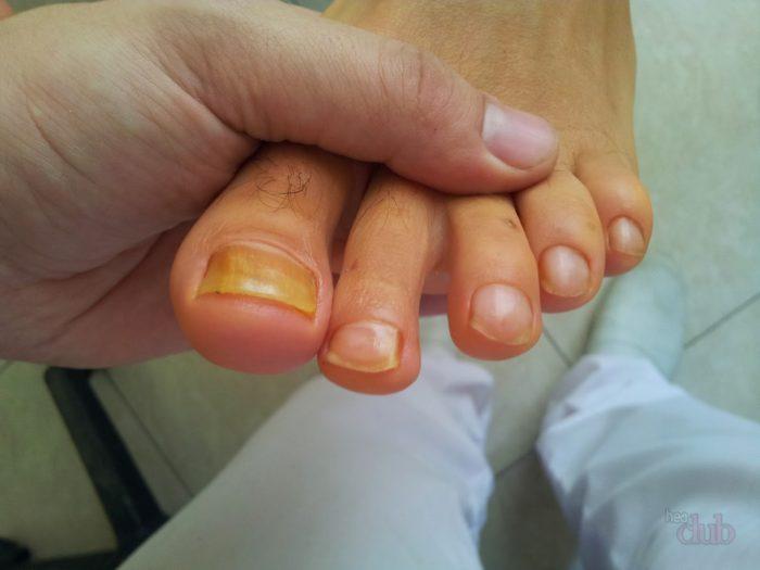 Грибок на пальцах рук лечение препараты