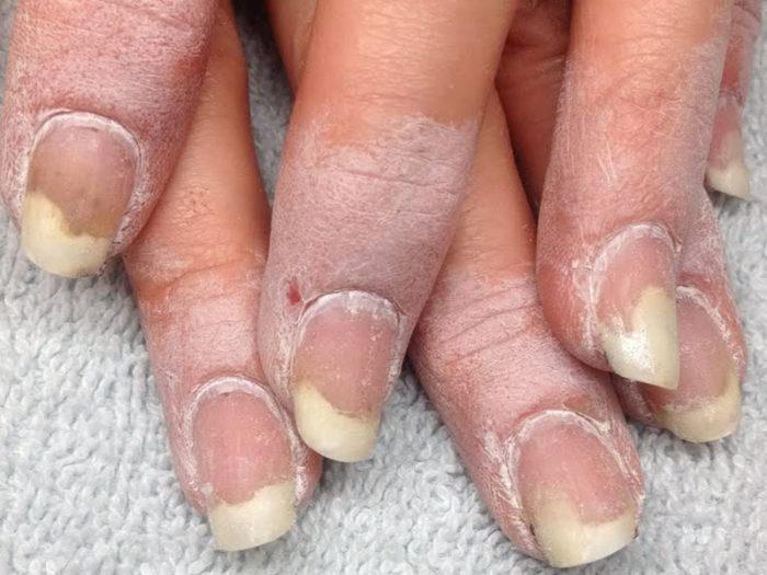Последствия ногтевого грибка на ногах